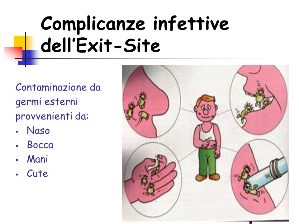 Complicanze infettive dell'Exit-Site
