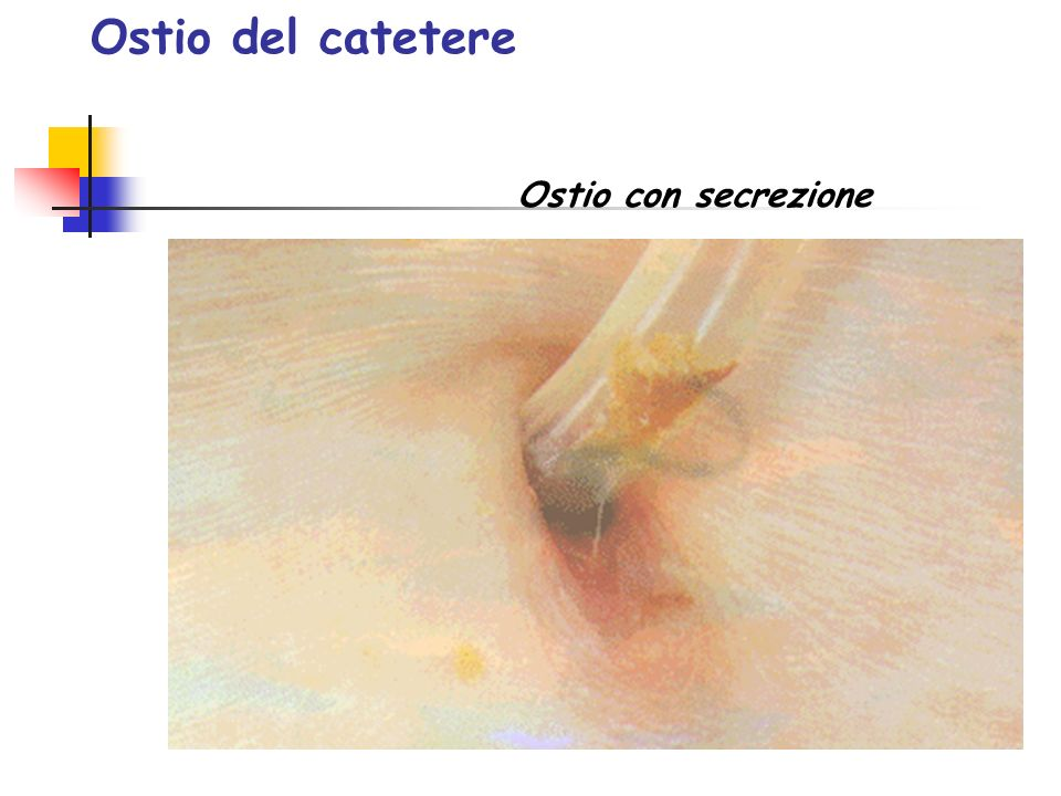 Ostio del catetere Ostio con secrezione
