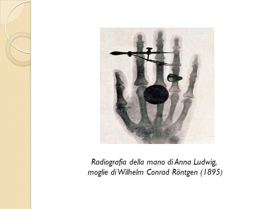 Radiografia della mano di Anna Ludwig,