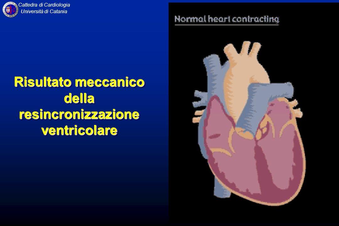 Risultato meccanico della resincronizzazione ventricolare