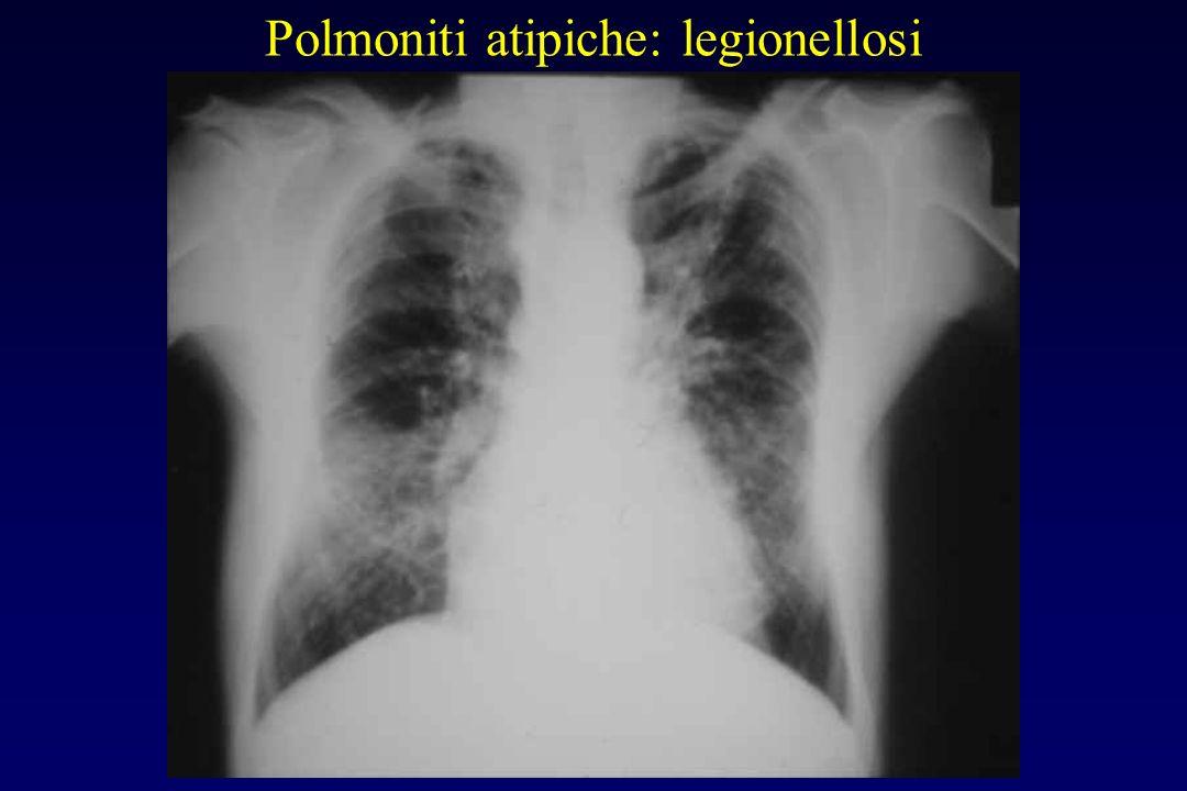 Polmoniti atipiche: legionellosi