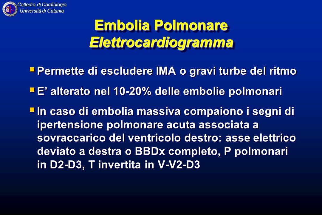 Embolia Polmonare Elettrocardiogramma