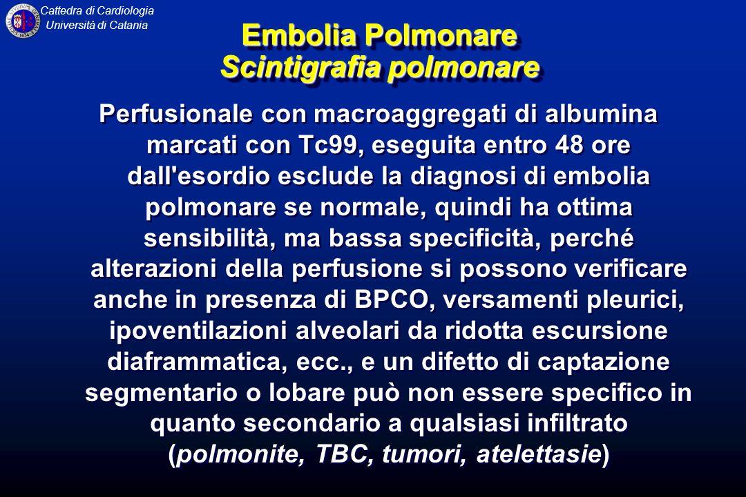 Embolia Polmonare Scintigrafia polmonare