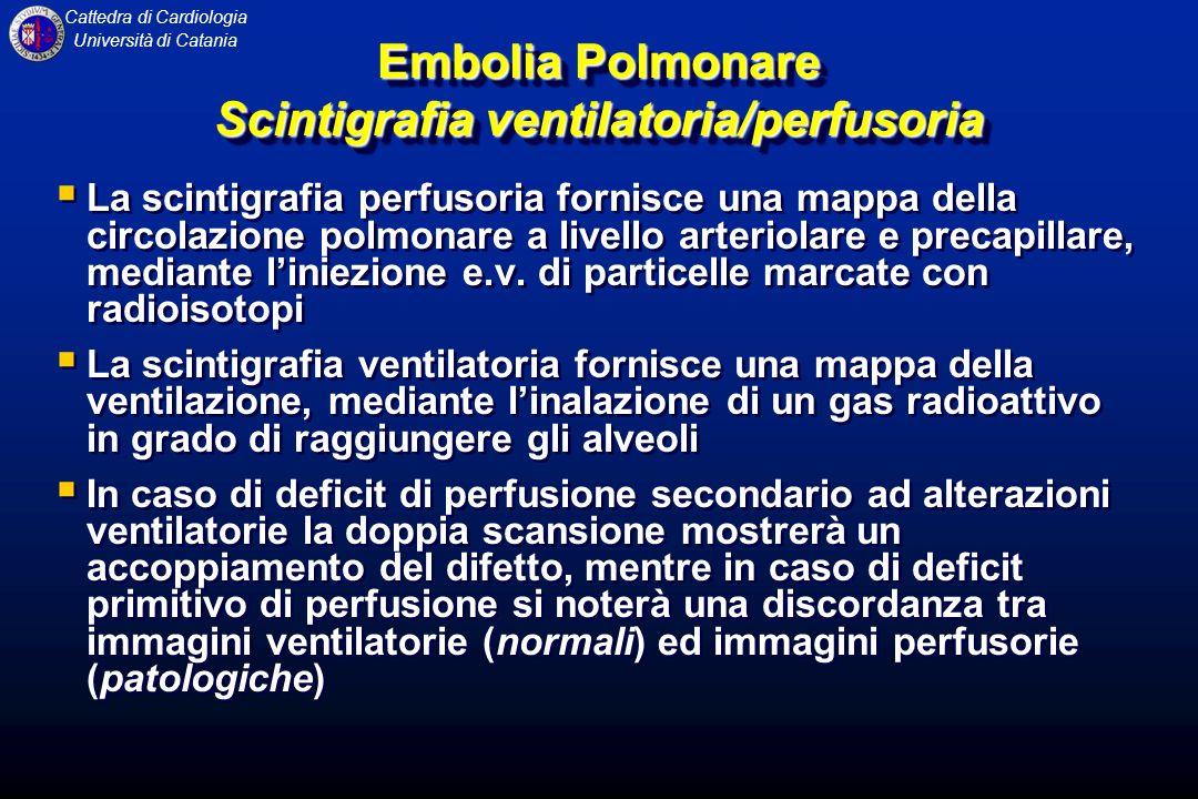 Embolia Polmonare Scintigrafia ventilatoria/perfusoria