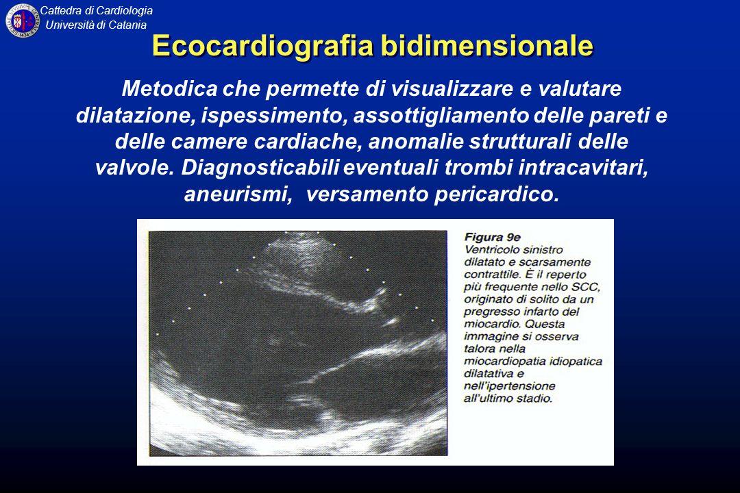 Ecocardiografia bidimensionale