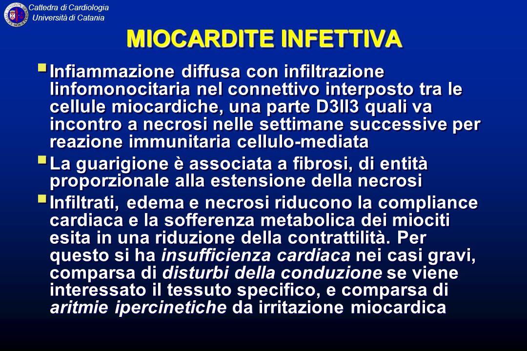MIOCARDITE INFETTIVA