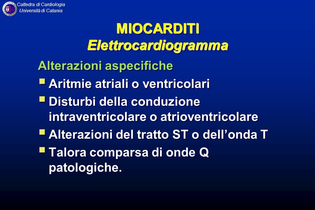 MIOCARDITI Elettrocardiogramma