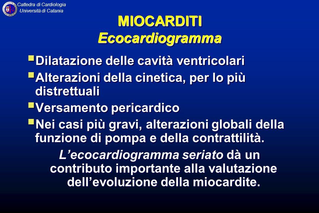 MIOCARDITI Ecocardiogramma