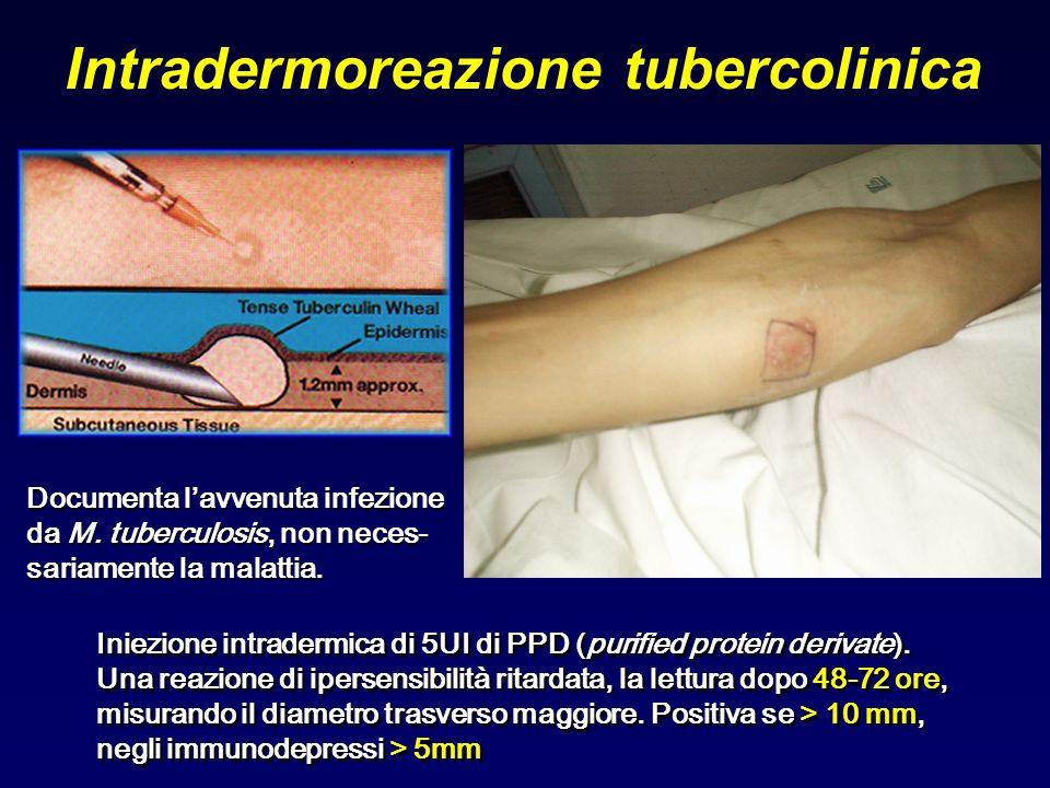 Intradermoreazione tubercolinica