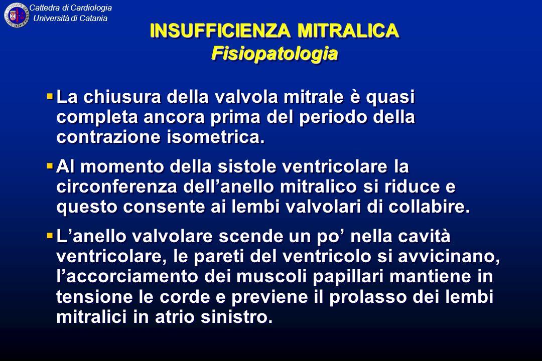 INSUFFICIENZA MITRALICA Fisiopatologia
