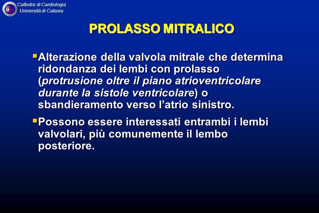 PROLASSO MITRALICO