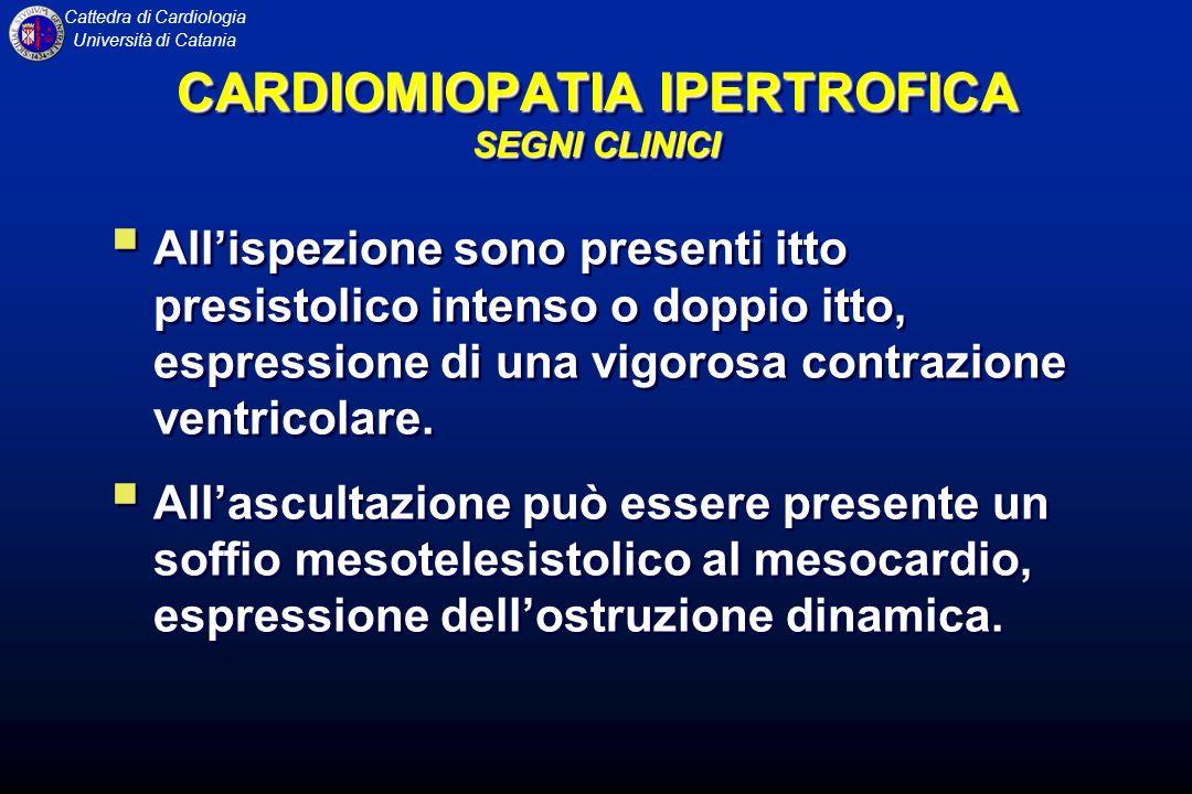 CARDIOMIOPATIA IPERTROFICA SEGNI CLINICI