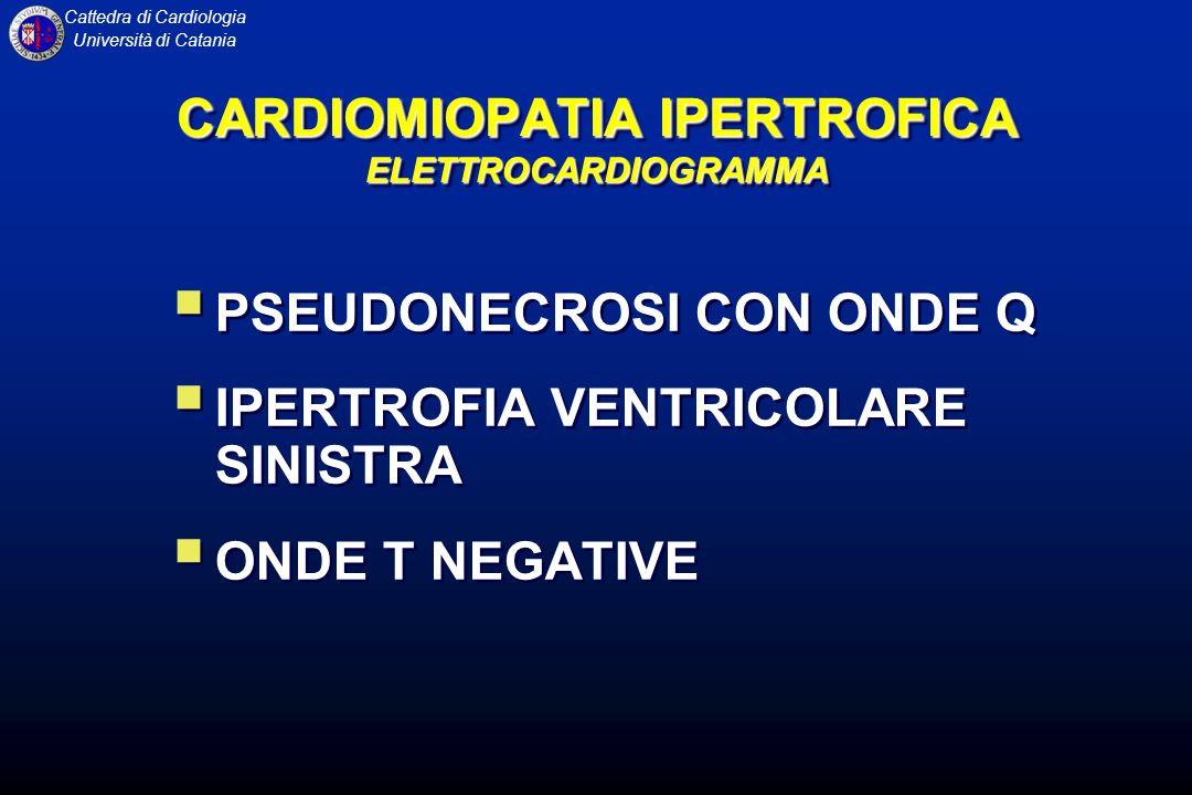 CARDIOMIOPATIA IPERTROFICA ELETTROCARDIOGRAMMA