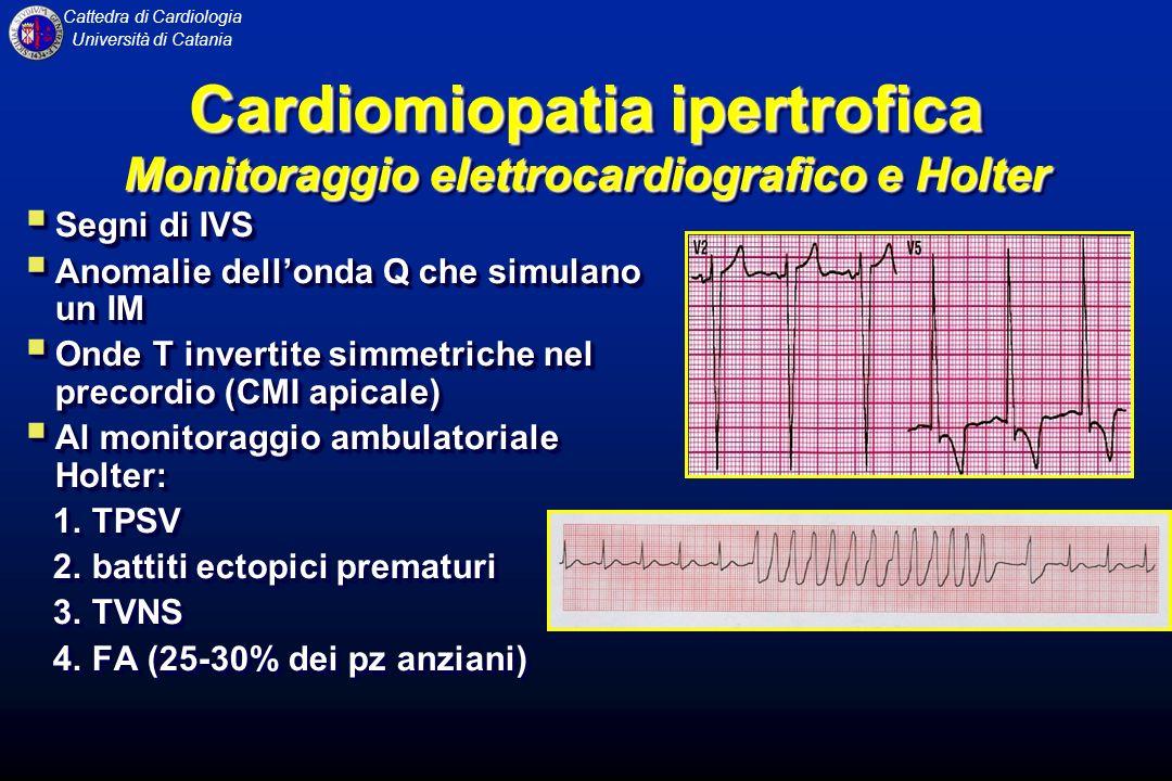 Cardiomiopatia ipertrofica Monitoraggio elettrocardiografico e Holter