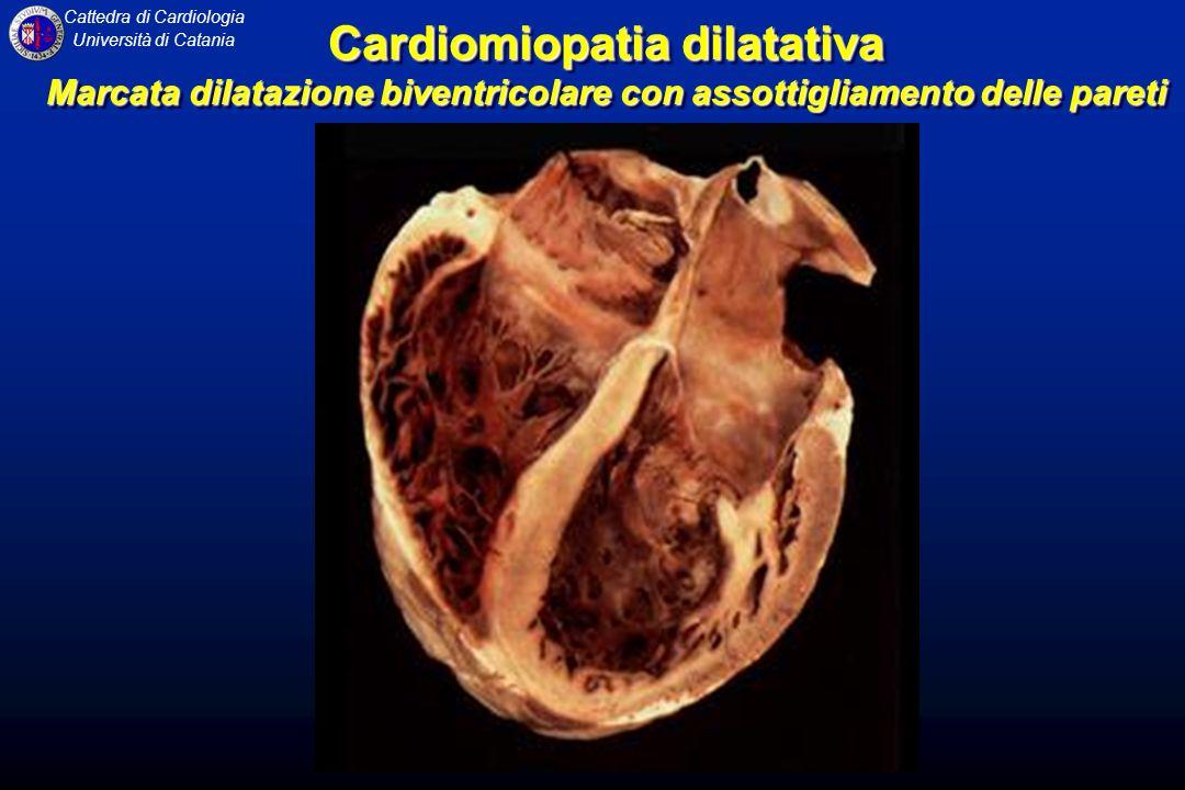 Cardiomiopatia dilatativa Marcata dilatazione biventricolare con assottigliamento delle pareti