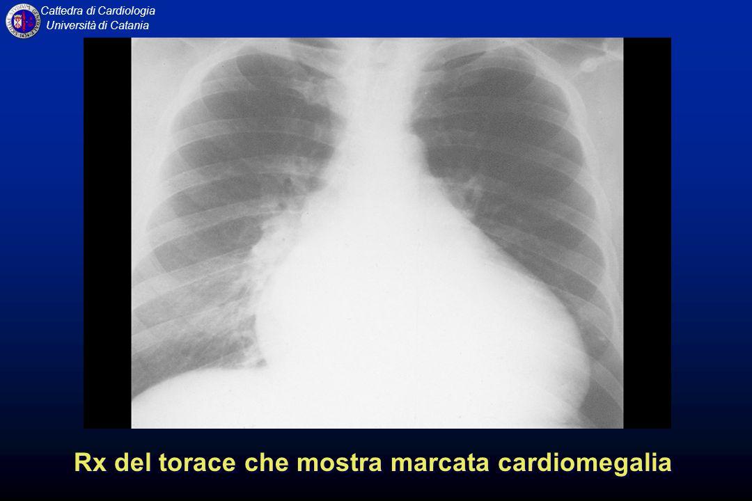 Rx del torace che mostra marcata cardiomegalia