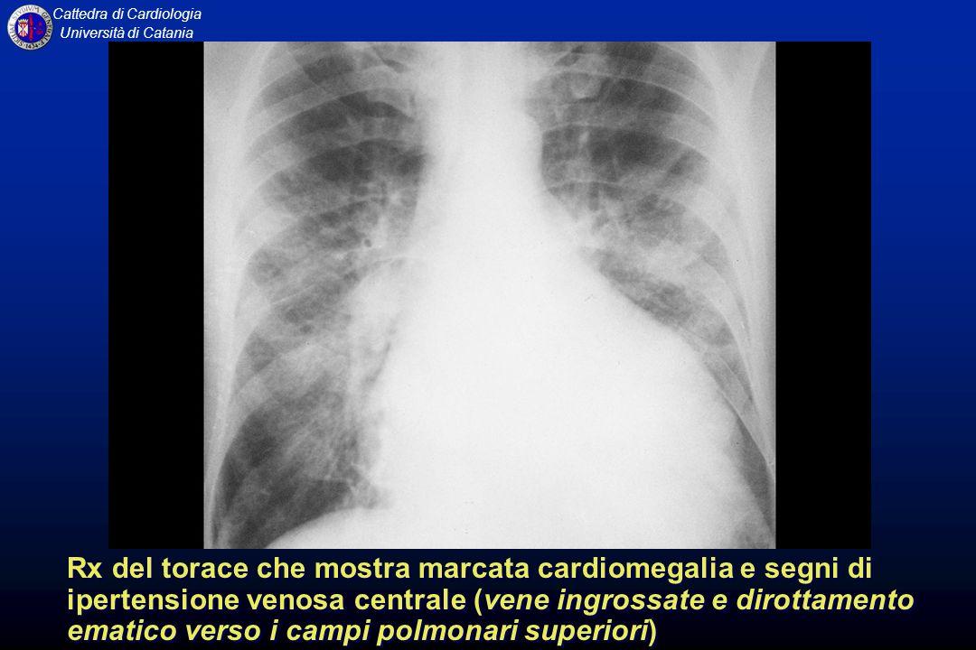 Rx del torace che mostra marcata cardiomegalia e segni di ipertensione venosa centrale (vene ingrossate e dirottamento ematico verso i campi polmonari superiori)