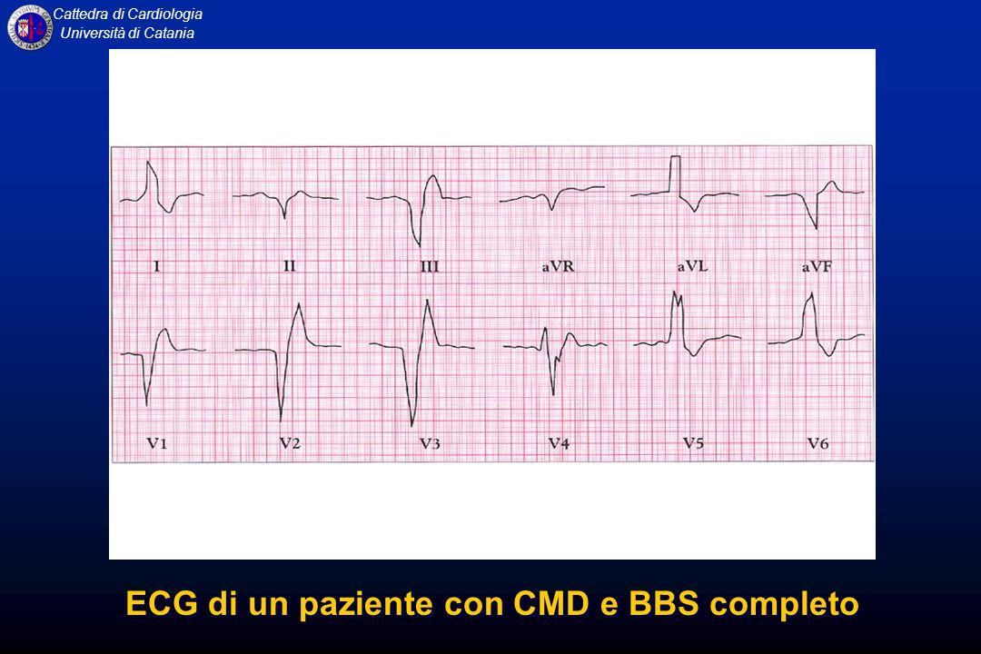 ECG di un paziente con CMD e BBS completo