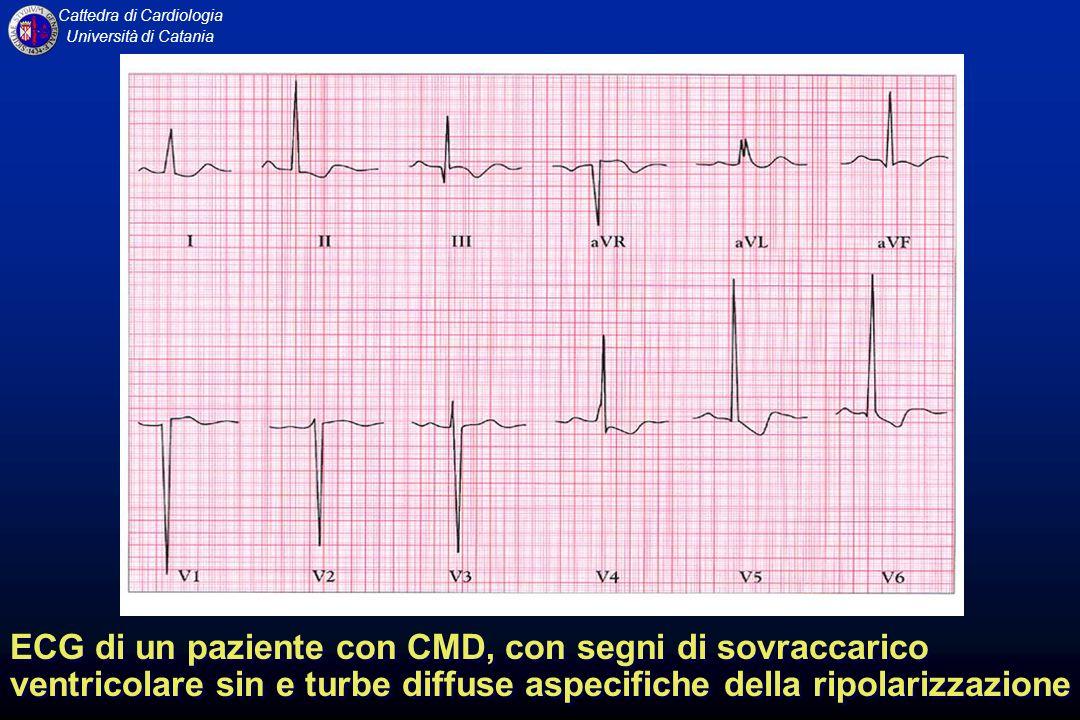 ECG di un paziente con CMD, con segni di sovraccarico ventricolare sin e turbe diffuse aspecifiche della ripolarizzazione