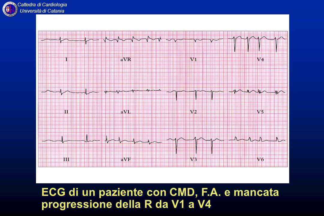 ECG di un paziente con CMD, F. A