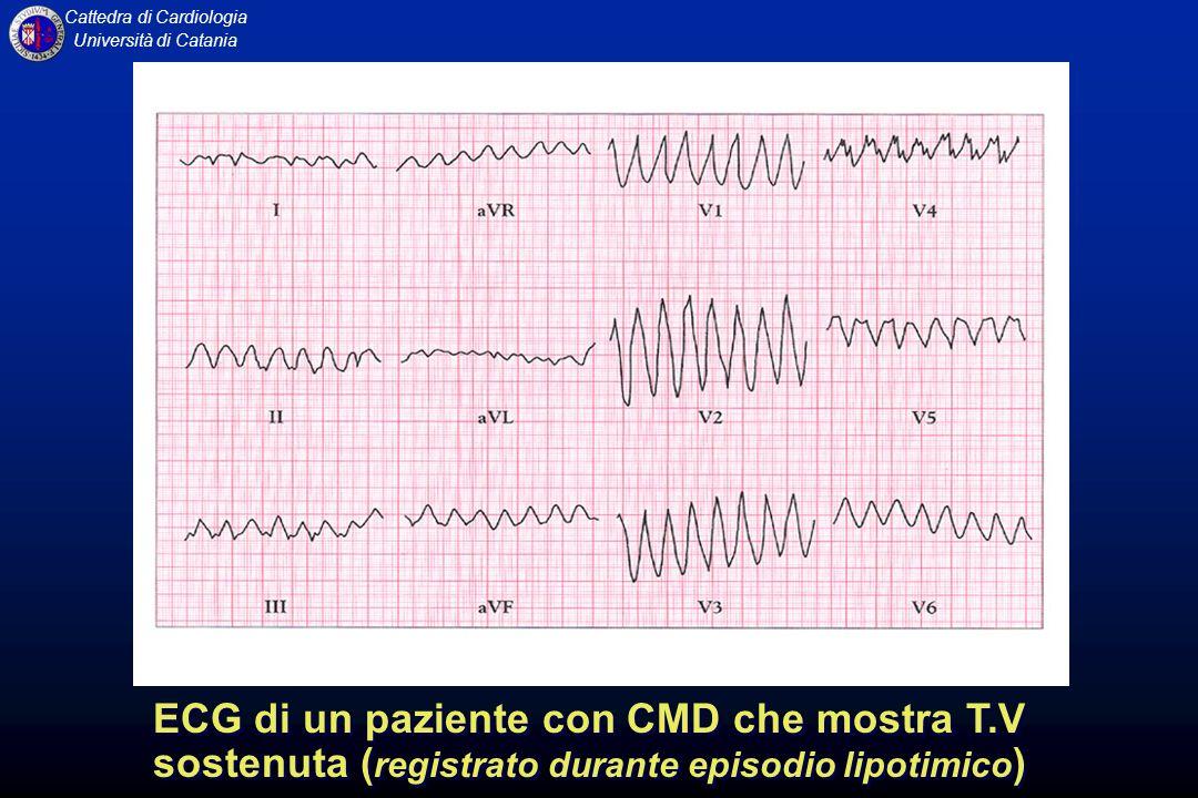 ECG di un paziente con CMD che mostra T