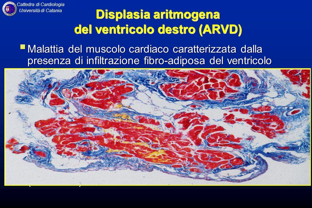 Displasia aritmogena del ventricolo destro (ARVD)