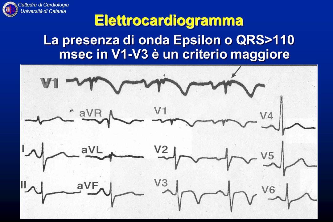 Elettrocardiogramma La presenza di onda Epsilon o QRS>110 msec in V1-V3 è un criterio maggiore