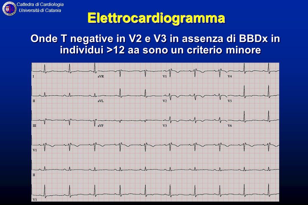 Elettrocardiogramma Onde T negative in V2 e V3 in assenza di BBDx in individui >12 aa sono un criterio minore.