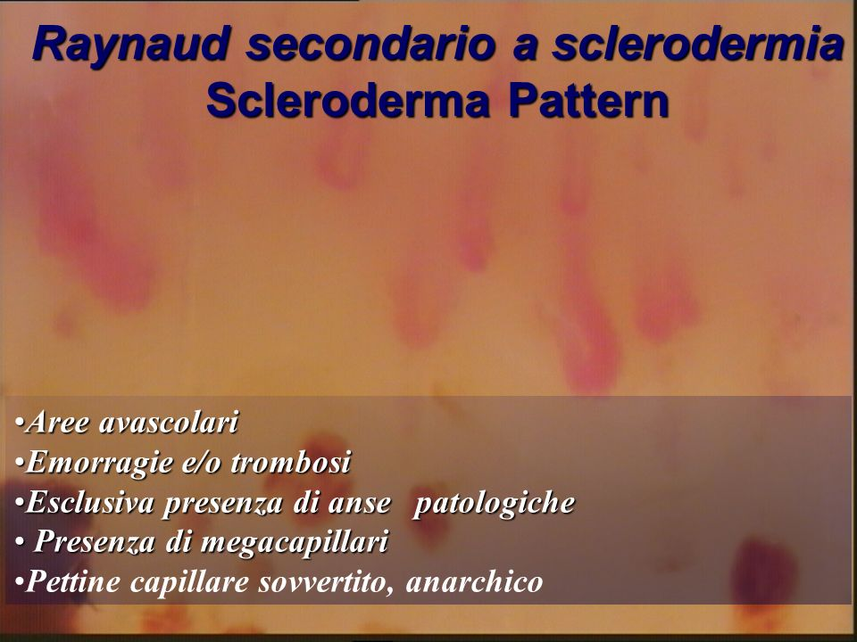 Raynaud secondario a sclerodermia Scleroderma Pattern