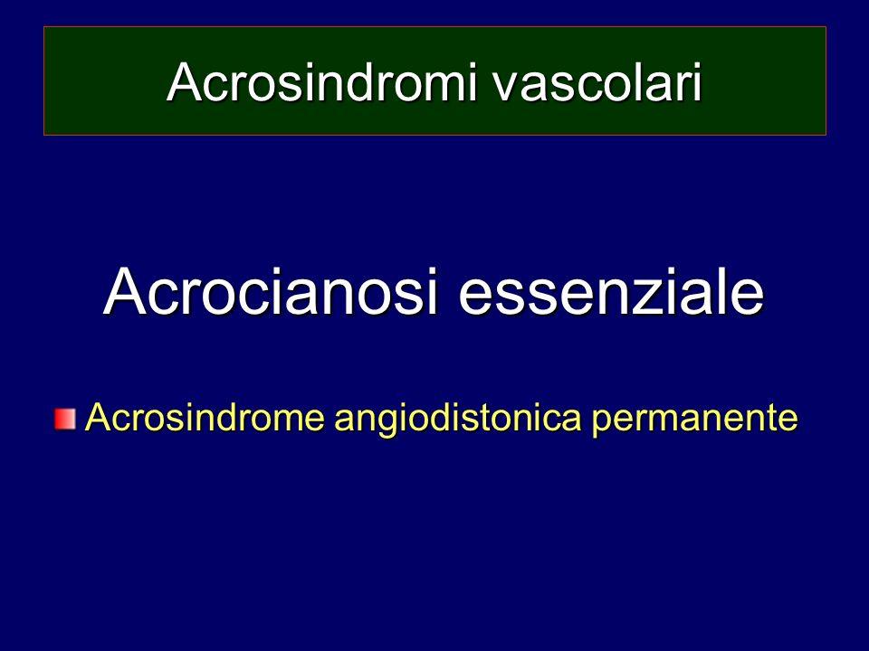 Acrosindromi vascolari