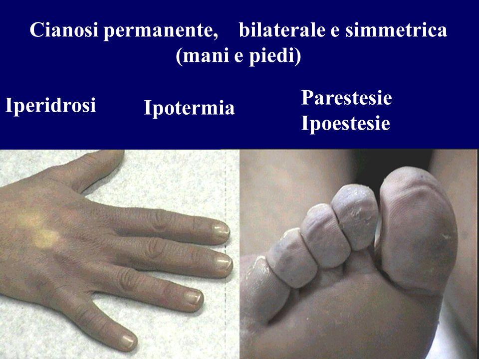 Cianosi permanente, bilaterale e simmetrica (mani e piedi)