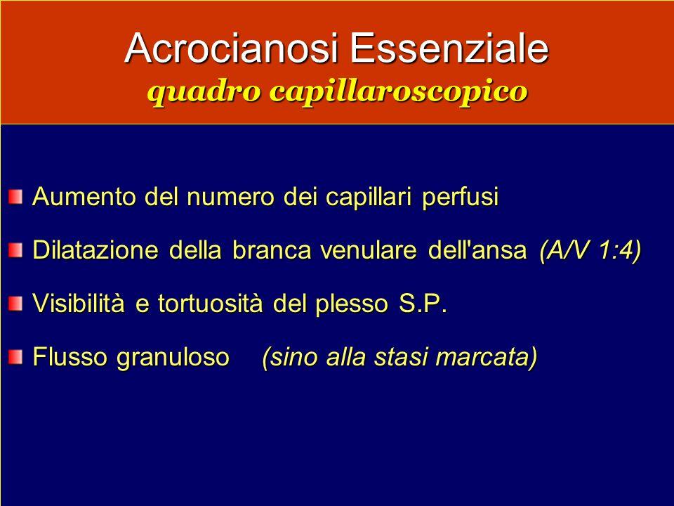 Acrocianosi Essenziale quadro capillaroscopico