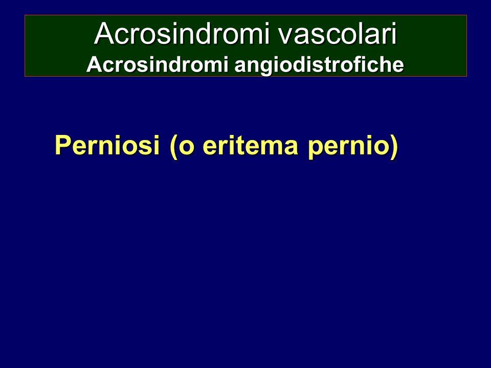 Acrosindromi vascolari Acrosindromi angiodistrofiche