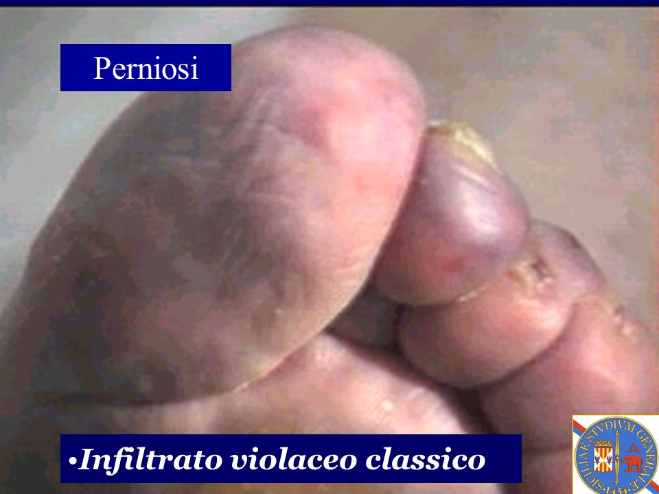 Perniosi Infiltrato violaceo classico