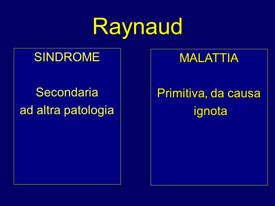Raynaud SINDROME MALATTIA Secondaria Primitiva, da causa