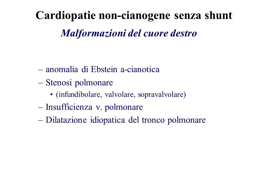 Cardiopatie non-cianogene senza shunt