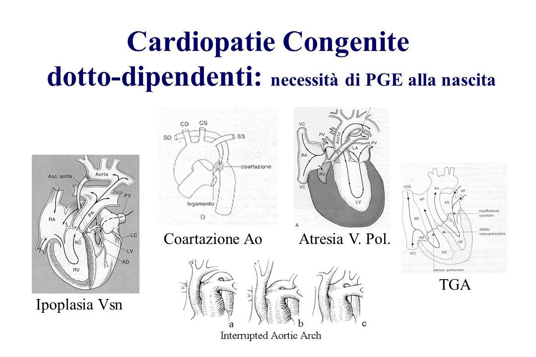 Cardiopatie Congenite dotto-dipendenti: necessità di PGE alla nascita