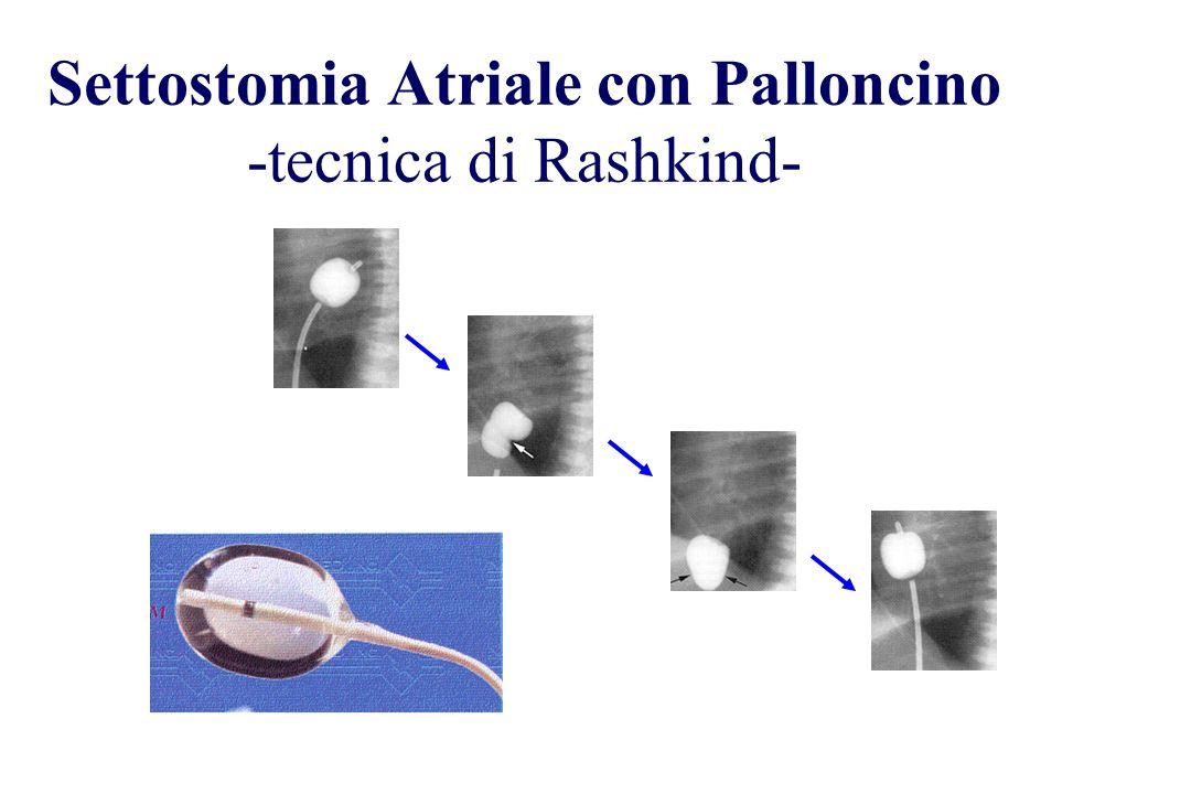 Settostomia Atriale con Palloncino -tecnica di Rashkind-