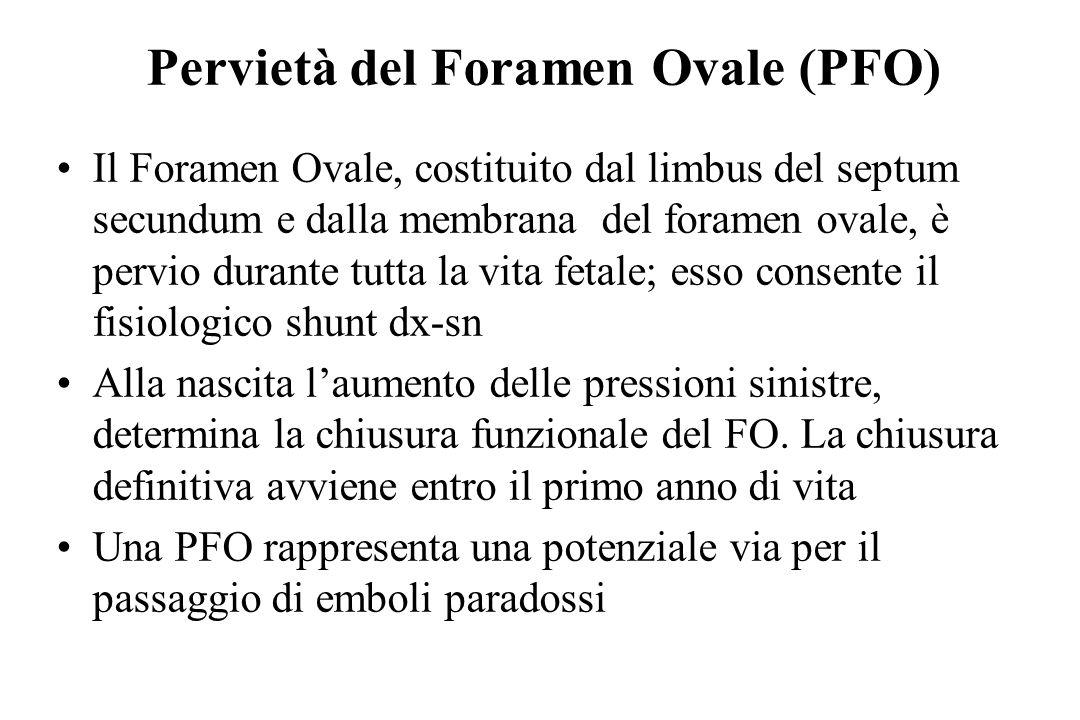 Pervietà del Foramen Ovale (PFO)
