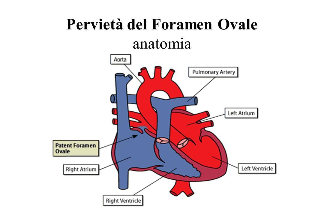 Pervietà del Foramen Ovale anatomia