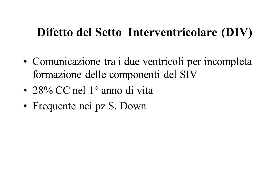 Difetto del Setto Interventricolare (DIV)