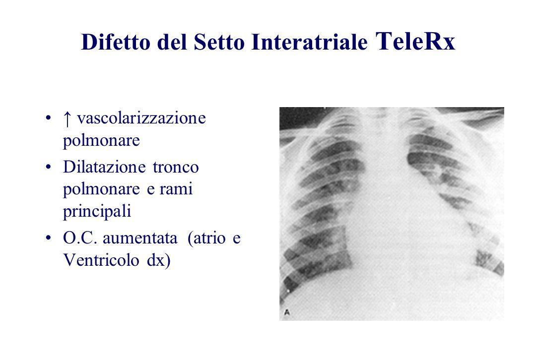 Difetto del Setto Interatriale TeleRx