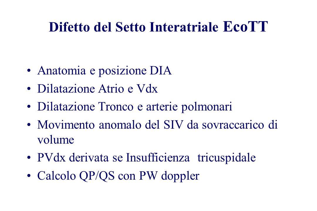 Difetto del Setto Interatriale EcoTT