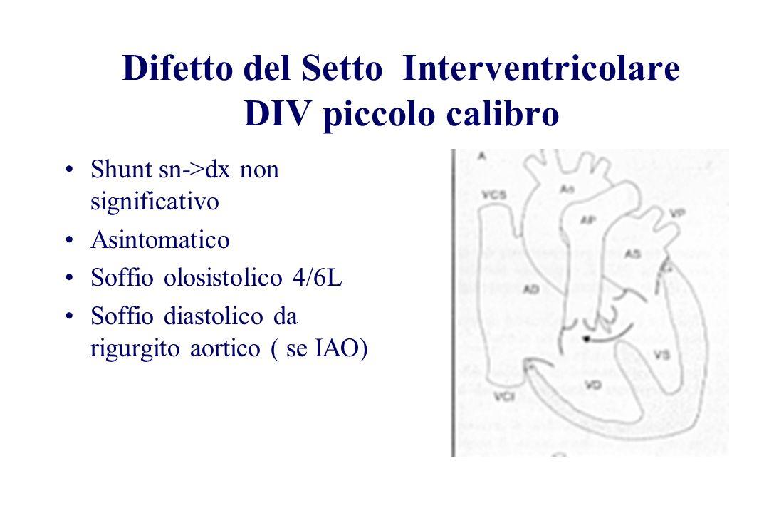 Difetto del Setto Interventricolare DIV piccolo calibro