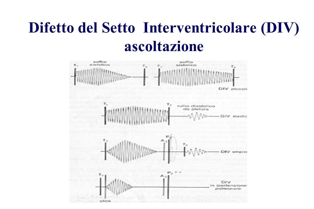 Difetto del Setto Interventricolare (DIV) ascoltazione