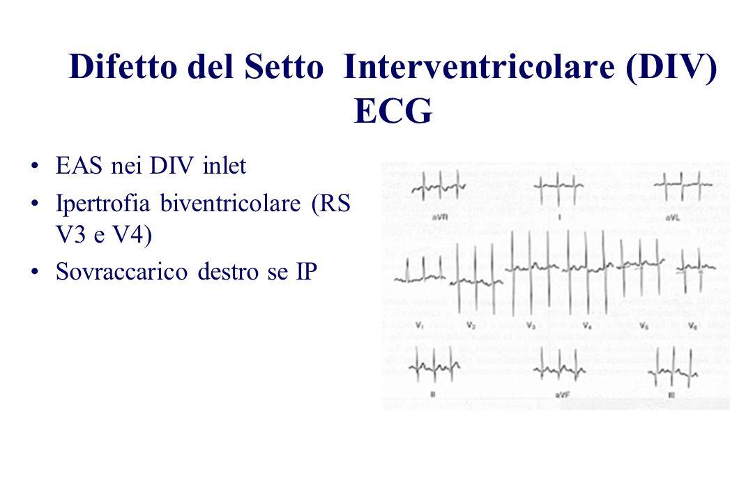 Difetto del Setto Interventricolare (DIV) ECG