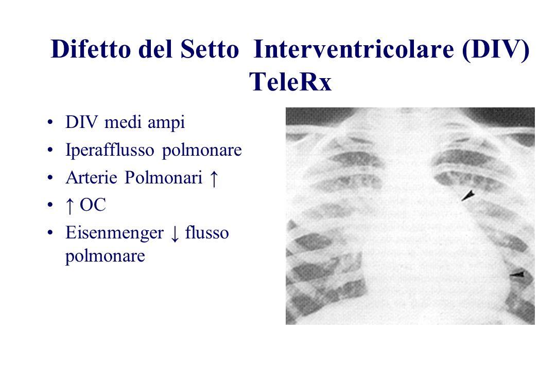 Difetto del Setto Interventricolare (DIV) TeleRx