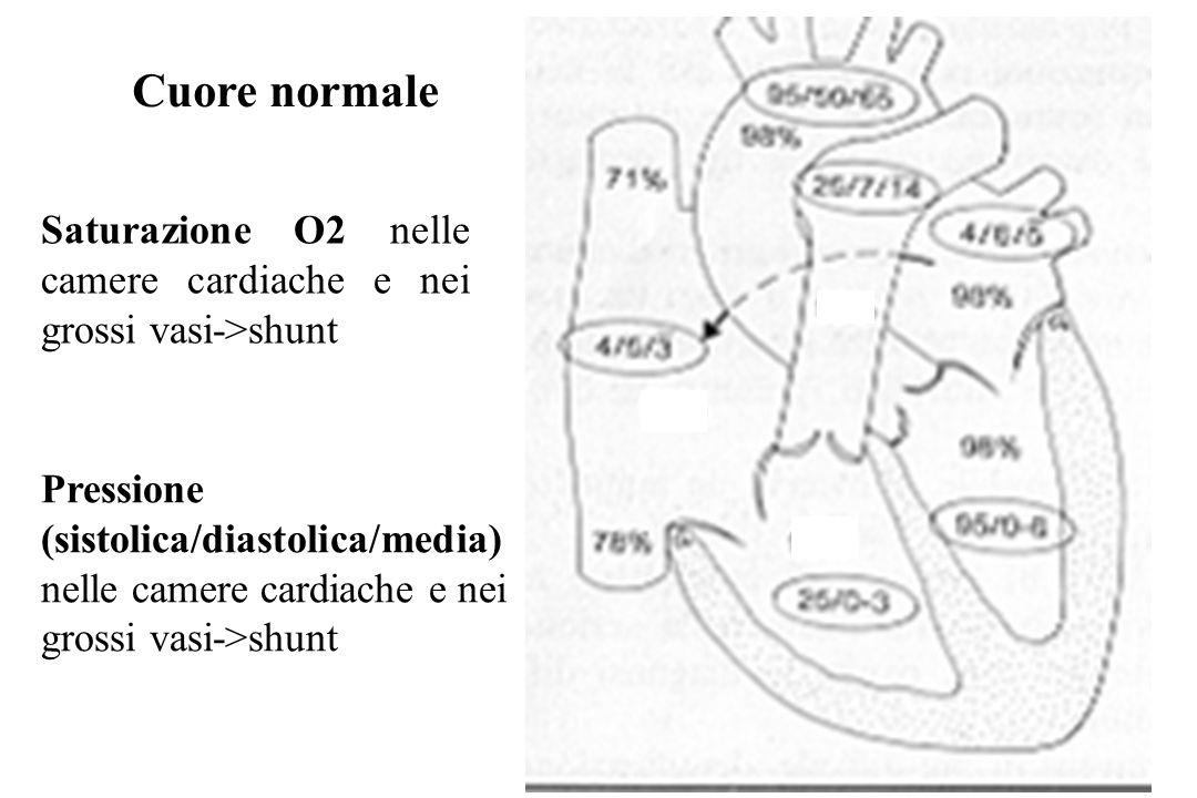 Cuore normale Saturazione O2 nelle camere cardiache e nei grossi vasi->shunt.