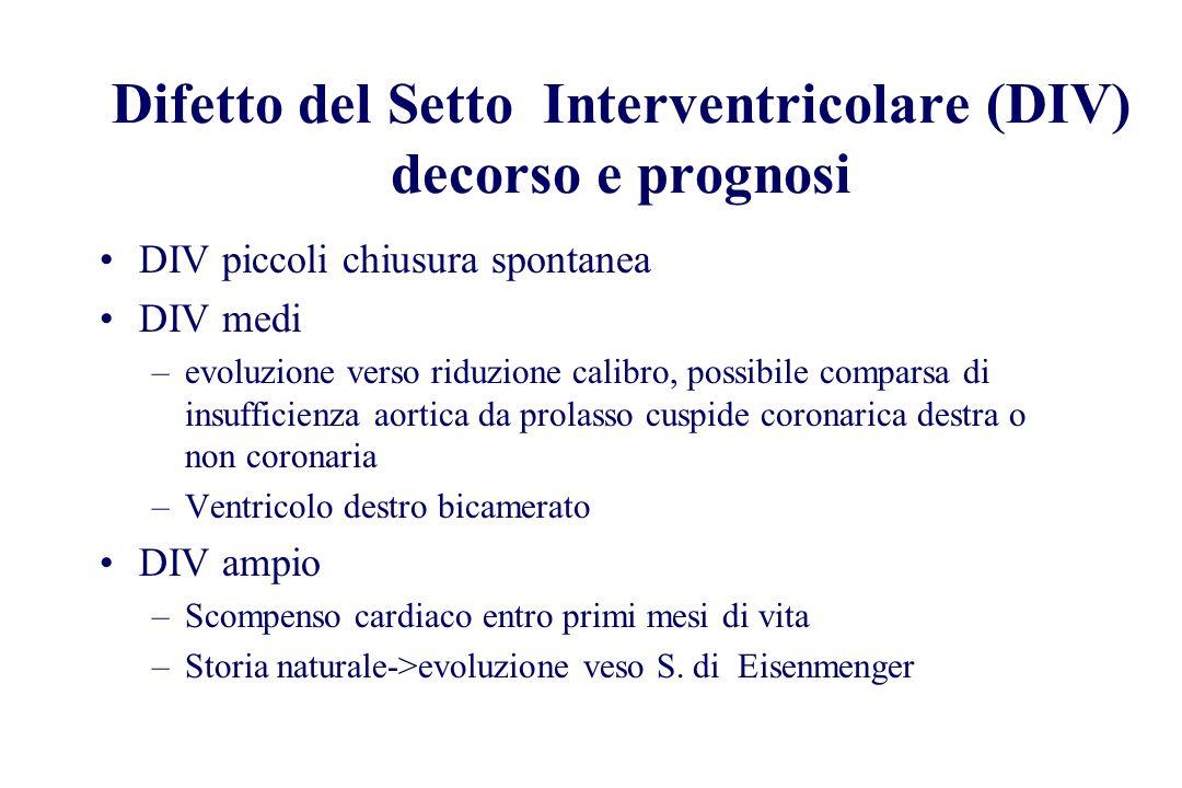 Difetto del Setto Interventricolare (DIV) decorso e prognosi