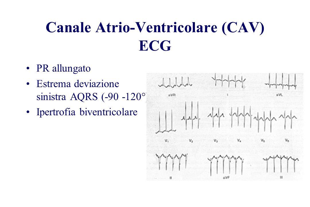 Canale Atrio-Ventricolare (CAV) ECG